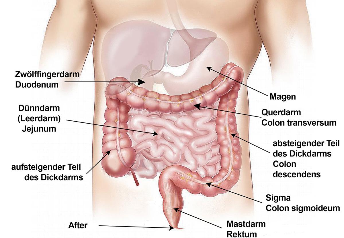 Hohe Entzündungswerte Darm